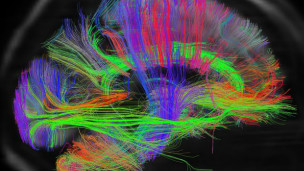 130217103246_human_brain_mapping_304x171_hcp_nocredit (1)